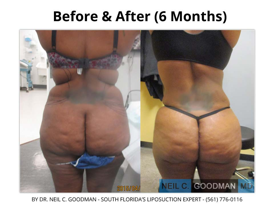 Large Volume Liposuction for woman