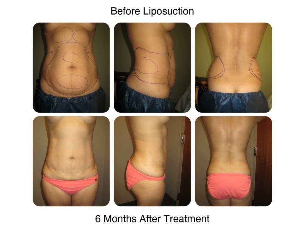 Liposuction, Laser Lipo Body Sculpting
