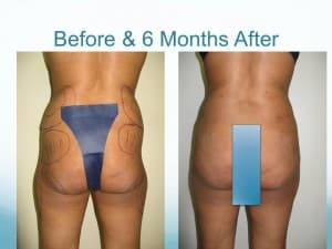 Smartlipo of 25 Y/O woman resultss before and after