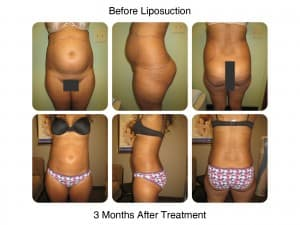 Liposuction before and after 3 month