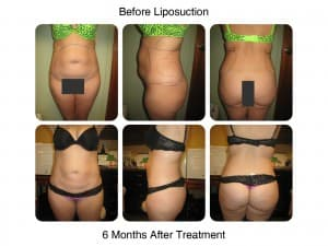 Lipo And Fat Transfer woman before and after
