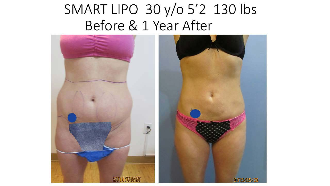 Smartlipo 30 Y/O woman after 1 Year