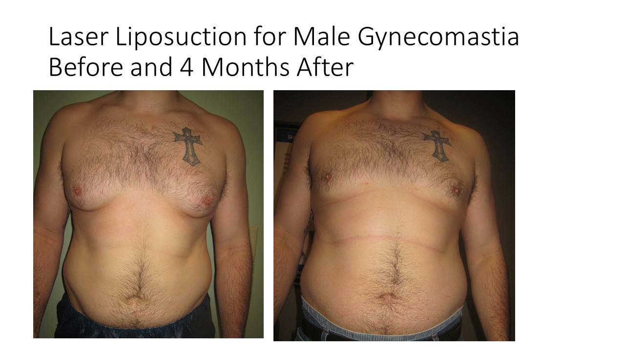 Laser Liposuction Male