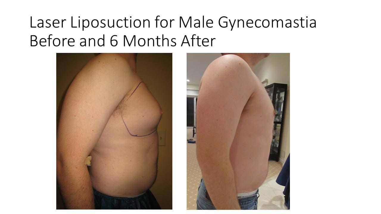 Laser Liposuction Male Gynecomastia