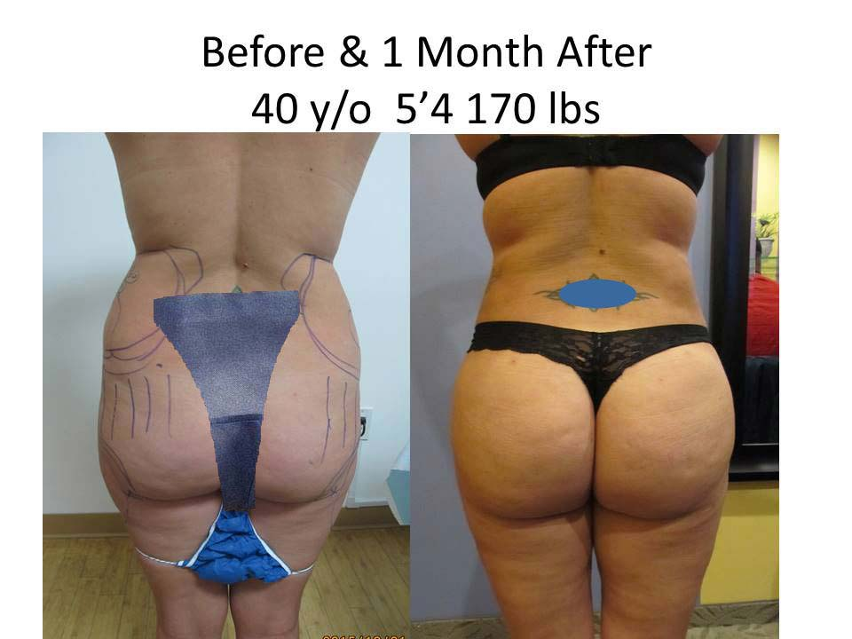 Brazilian Buttlift 1 Month results