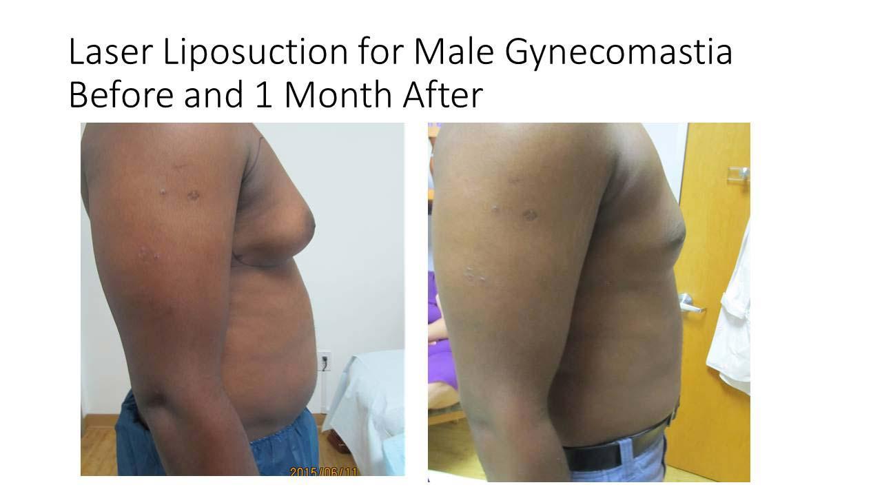 Laser Lyposuction Male Gynecomostia