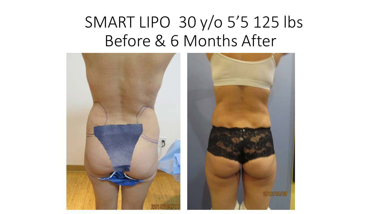 Smartlipo 30 Y/O woman results of before and after
