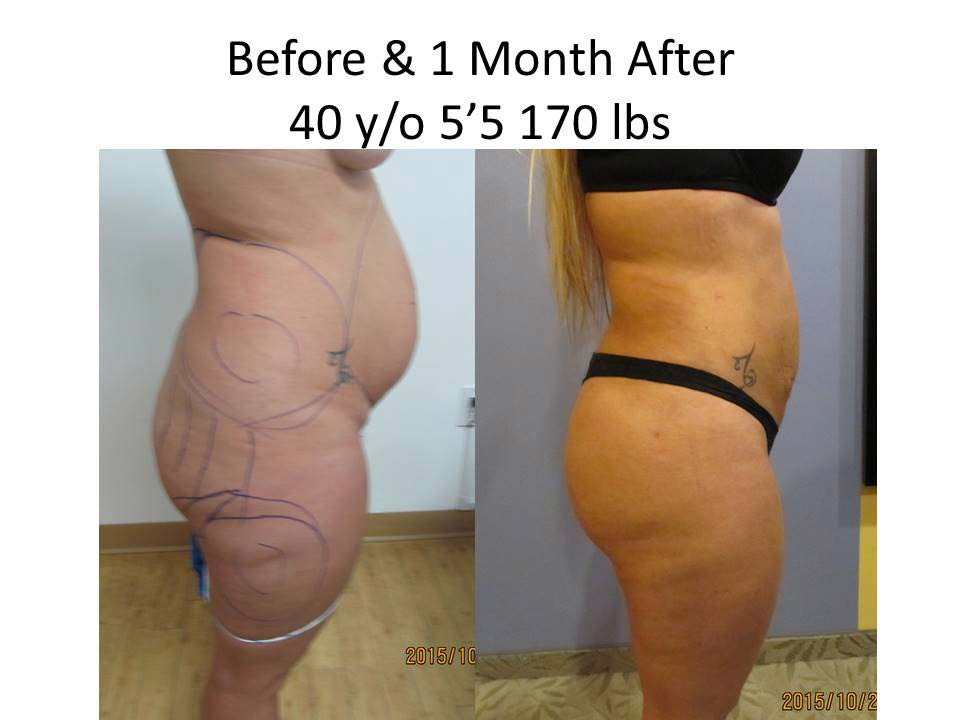 Brazilian Buttlift before and after 1 Month