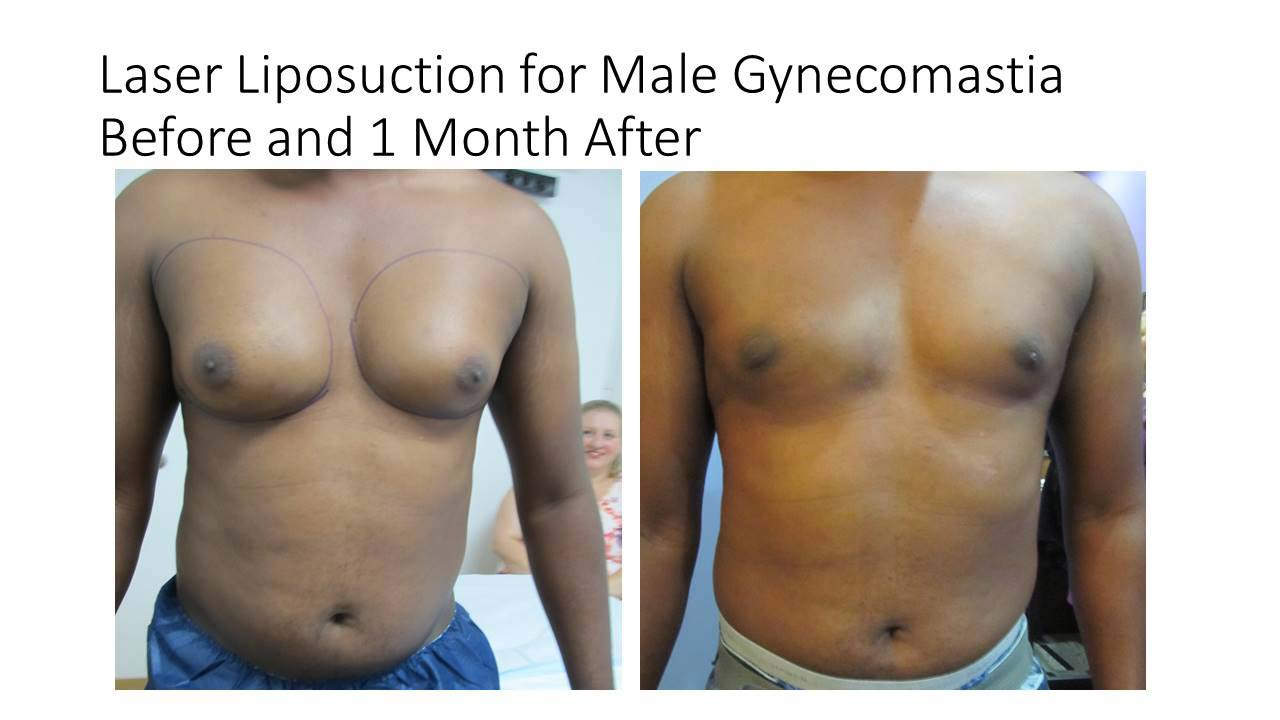 Laser Liposuction of Male after 1 Month
