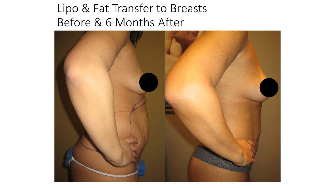 Lipo And Fat Transfer breasts woman