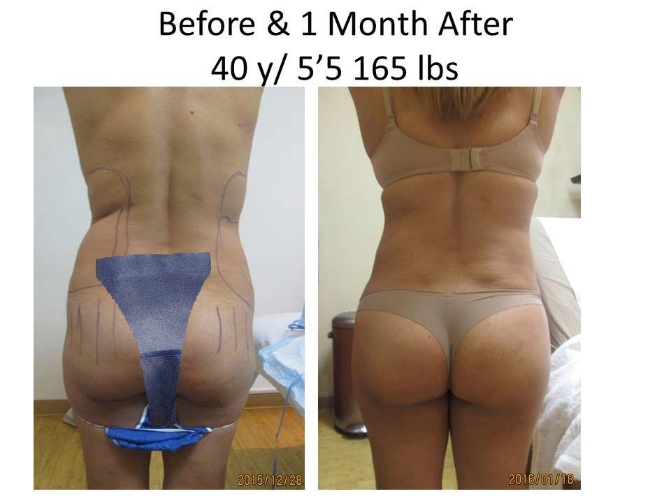 Brazilian Buttlift treatment results