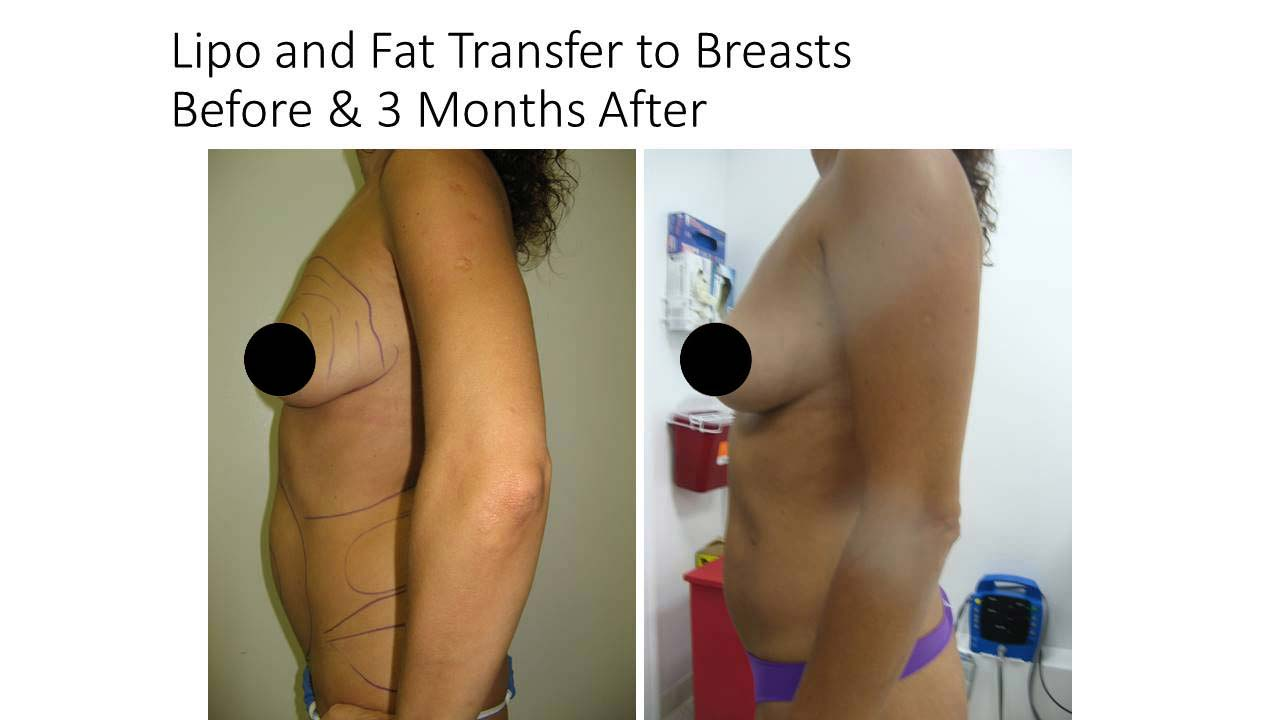 Lipo and Fat Transfer to Breasts Before and Afrer