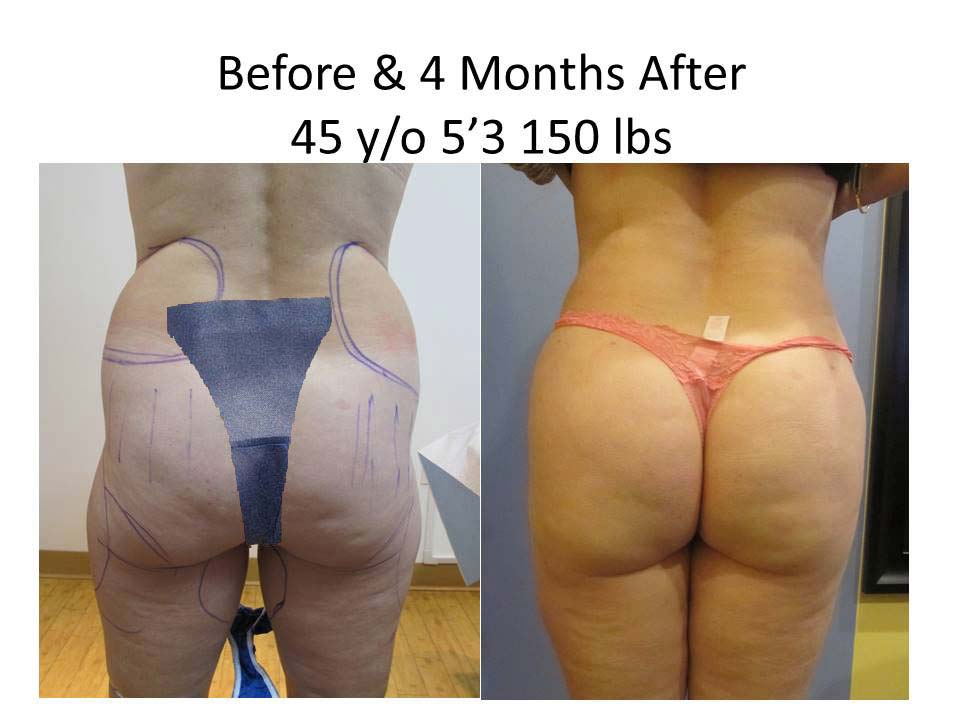 Brazilian Buttlift of 45 Y/O results photo