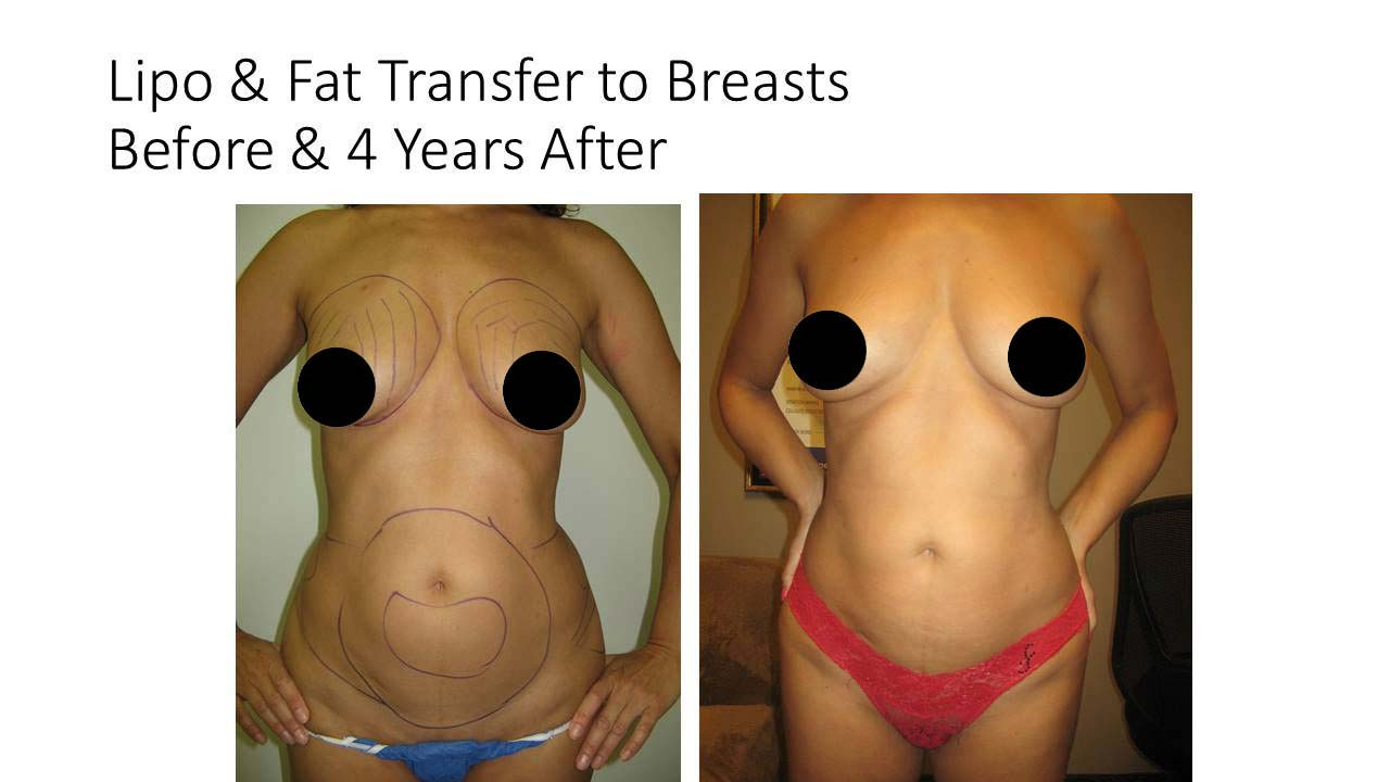 Lipo And Fat Transfer to breasts woman after 4Years