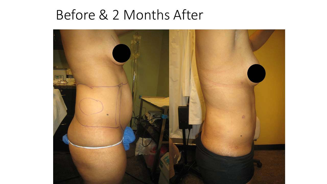 Breast augmentaion Reduction