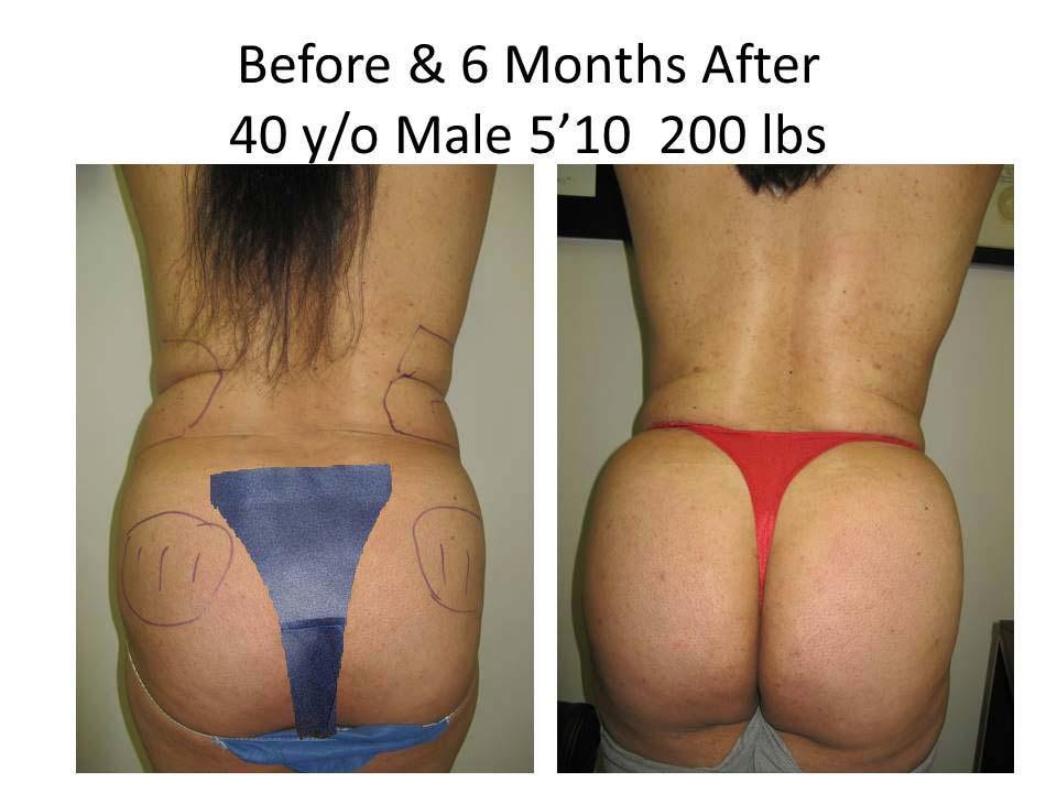 Brazilian Buttlift 40 Y/O 6 Months