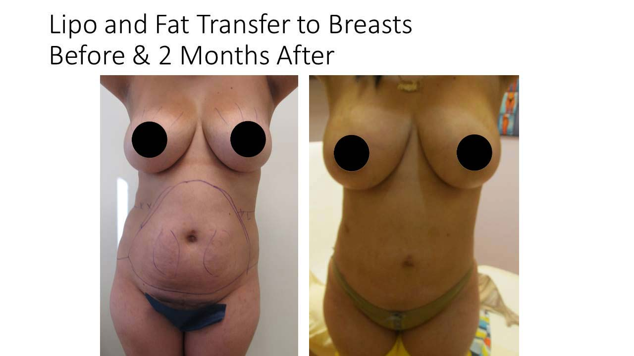 Lipo And Fat Transfer breasts of woman after 2 Months results