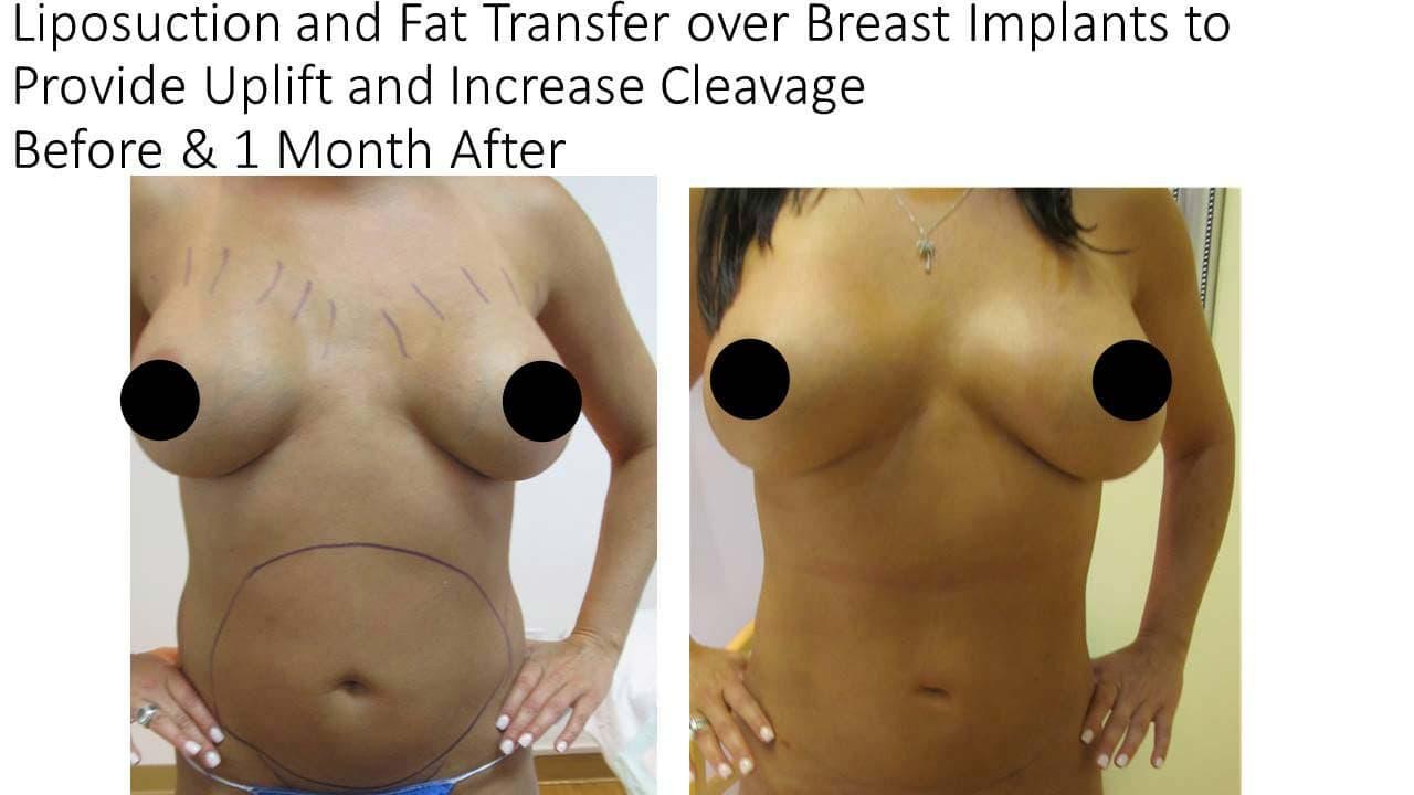 Breast Augmentaion woman