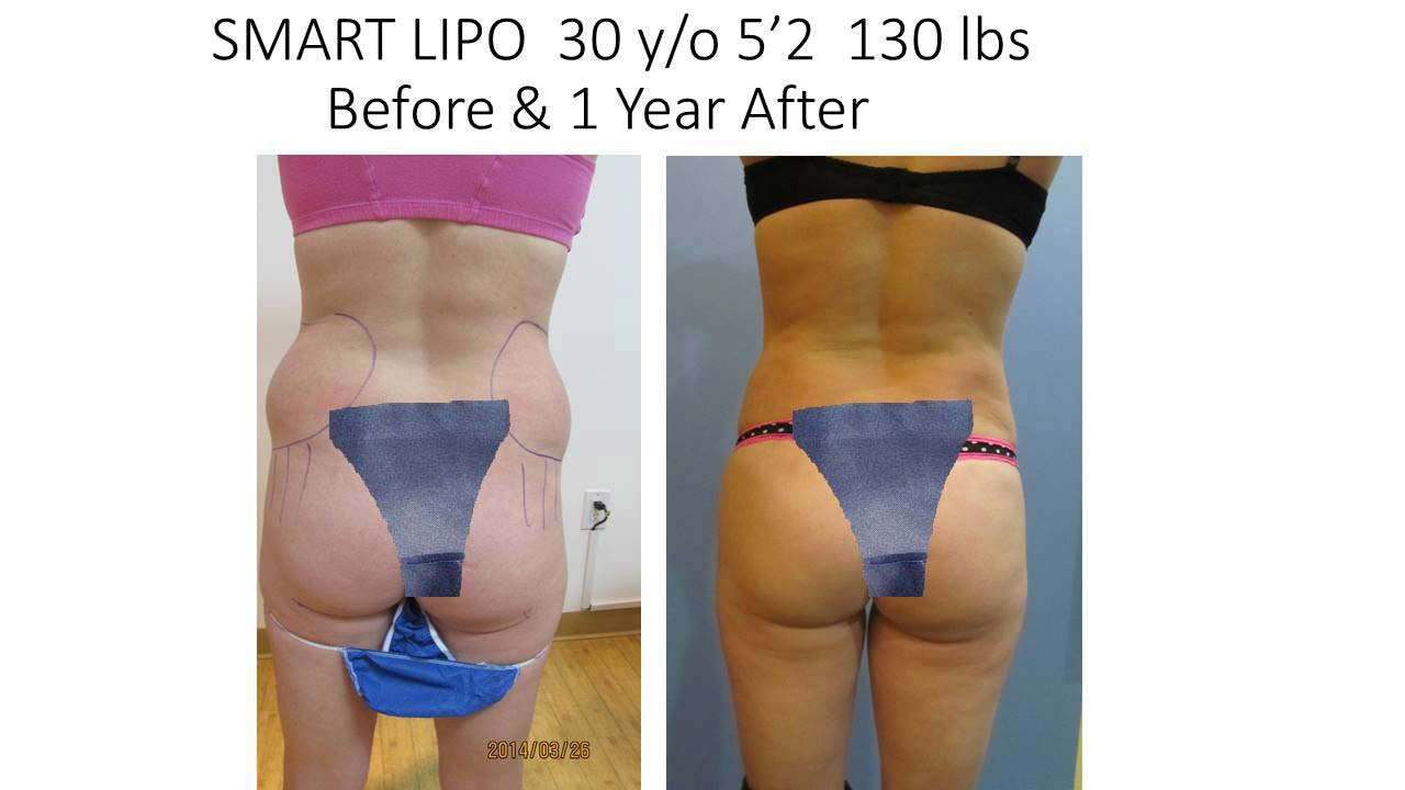 Smartlipo of 30 Y/O woman after 1 Year