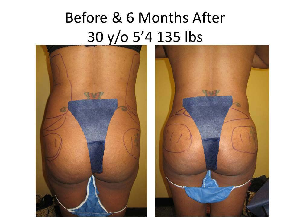 Brazilian Buttlift 30 Y/O resultss