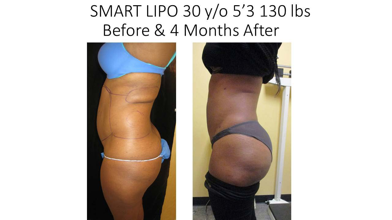 Smartlipo of 40 Y/O woman 4 Months results