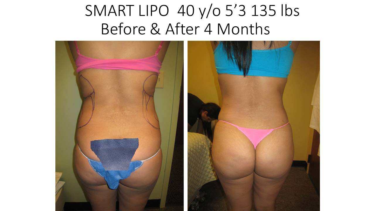 Smartlipo 40 Y/O woman before and after