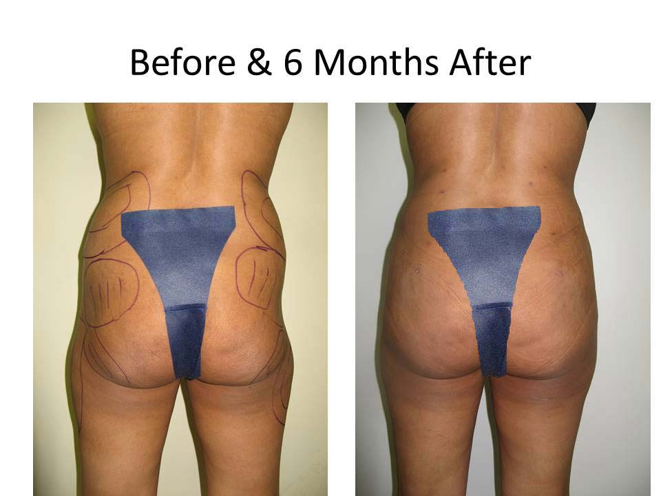 Brazilian Buttlift results photo 4
