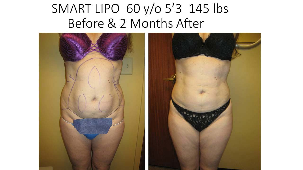 Smartlipo of 60 Y/O woman 2 Months