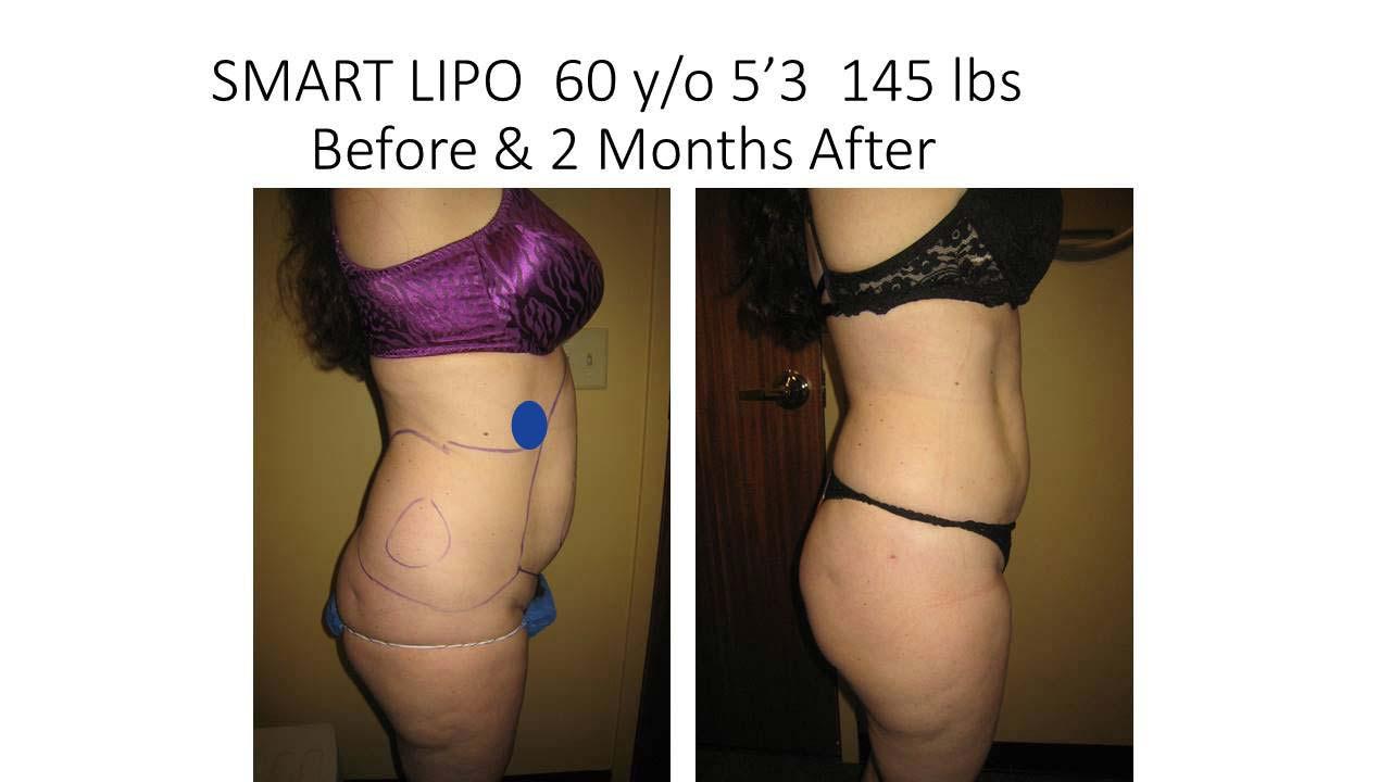 Smartlipo 60 Y/O woman 2 Months