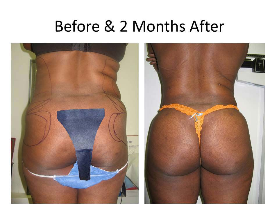Liposuction before and after photo