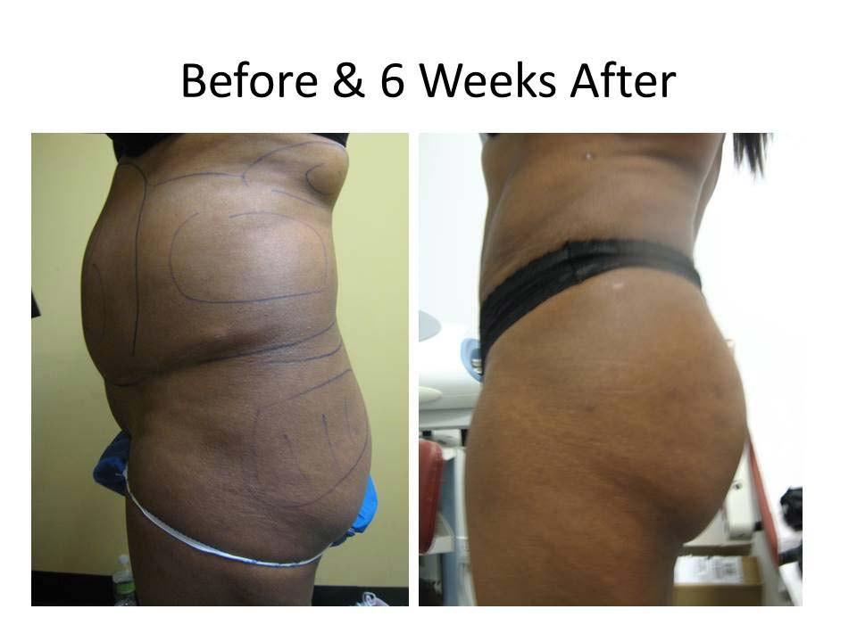 Brazilian Buttlift after 6 weeks resultss