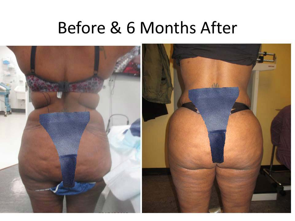 Liposuction photo