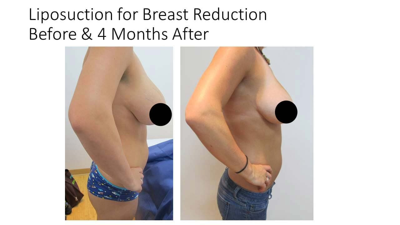 Liposuction For Breast Reduction woman