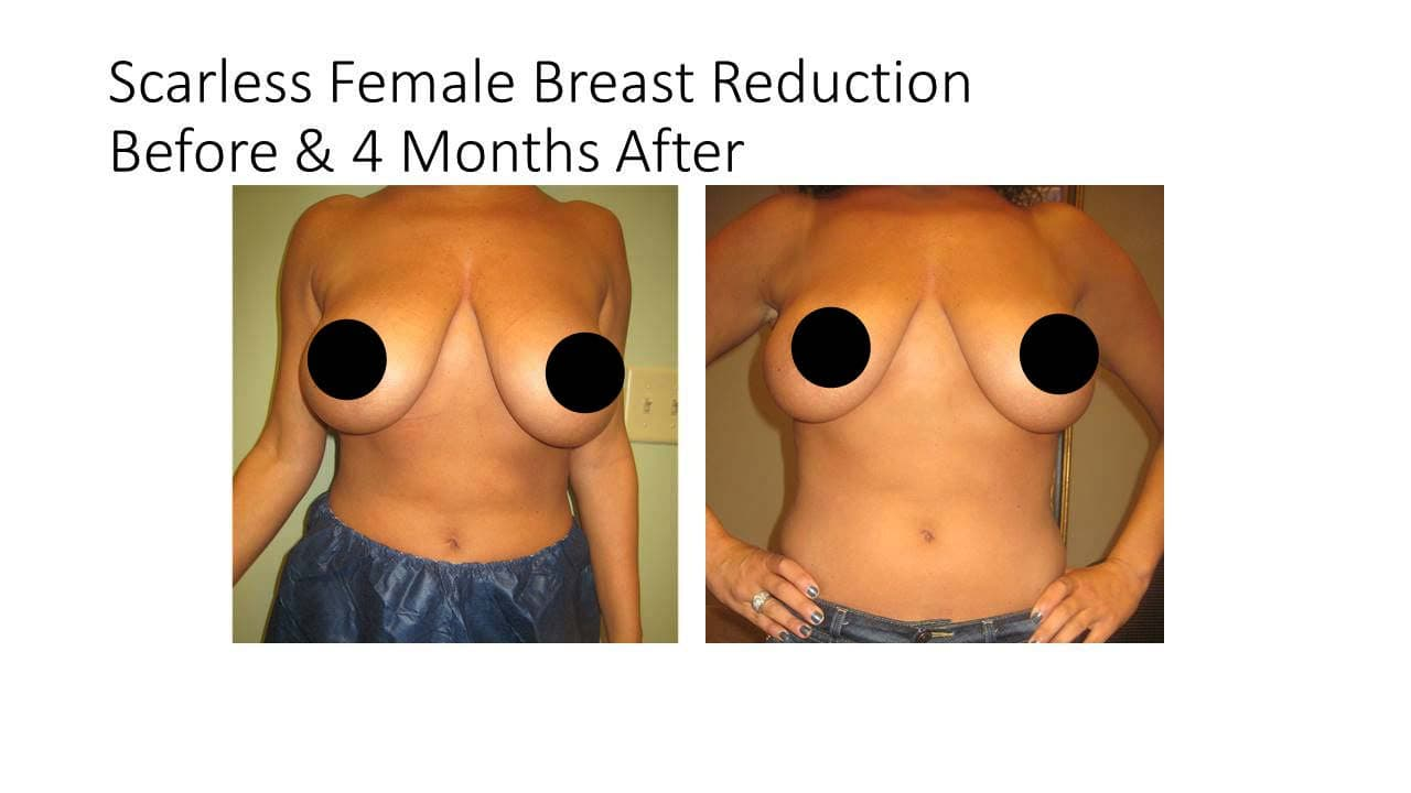 Scarless Female Breast Reduction