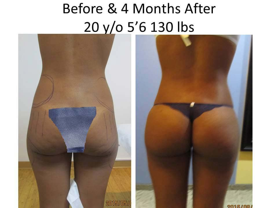 Brazilian Buttlift 20 Y/O 4 Months