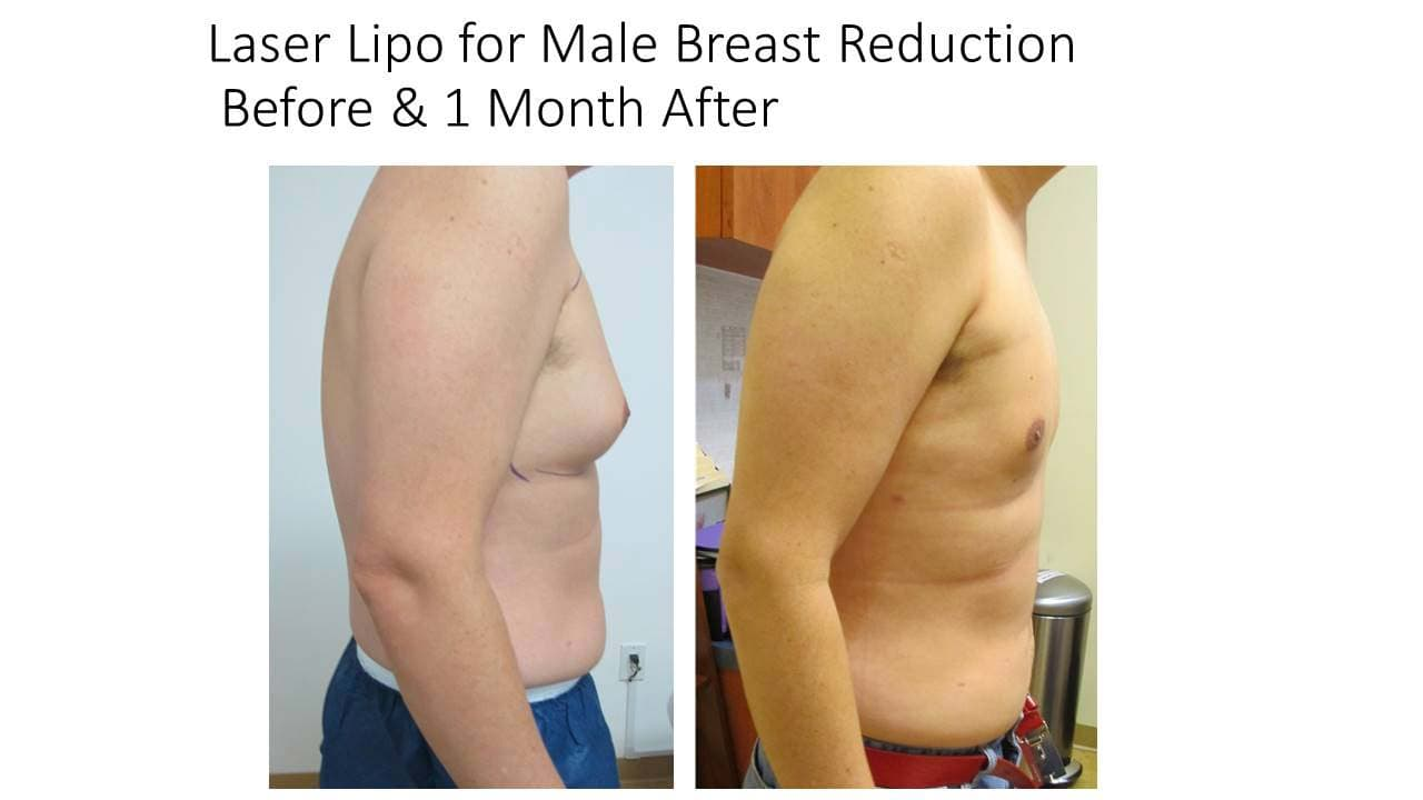 Laser Lipo Breast Reduction Male