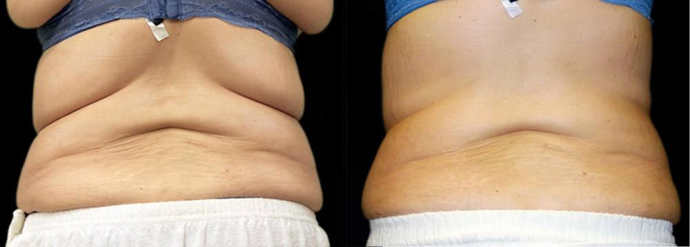 Vanquish Fat Removal Before and After Palm Beach 3 Treatments
