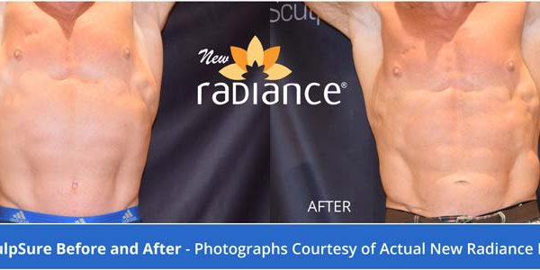 SculpSure Male results