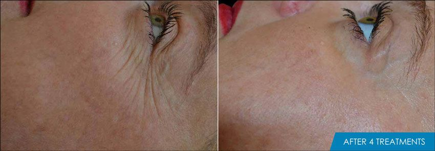 Exilis Crows feet before and after -4 treaments - New Radiance Cosmetic Center