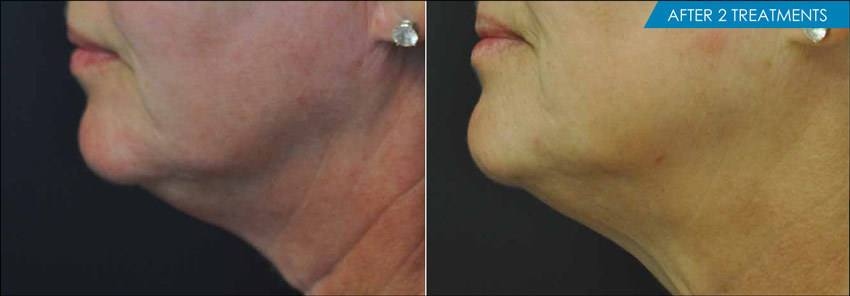 Exilis Neck before and after -2 treaments - New Radiance Cosmetic Center