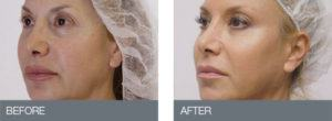 thread lift before & after 2