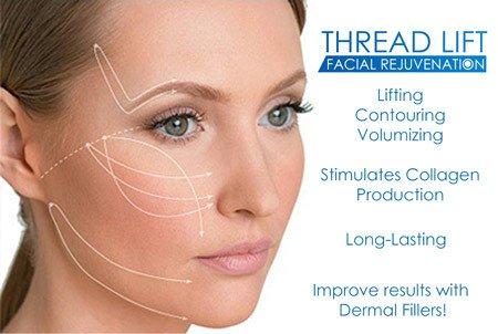 Nova Thread lift treatment Radiance of Palm Beach face image