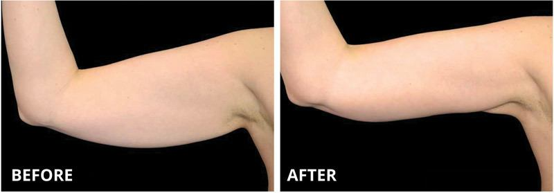 Ultra Sculpting Arms Before & After