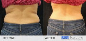 Ultra Sculpting Female flanks fat reduction before and after