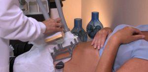 SculpSure Patient Treatment