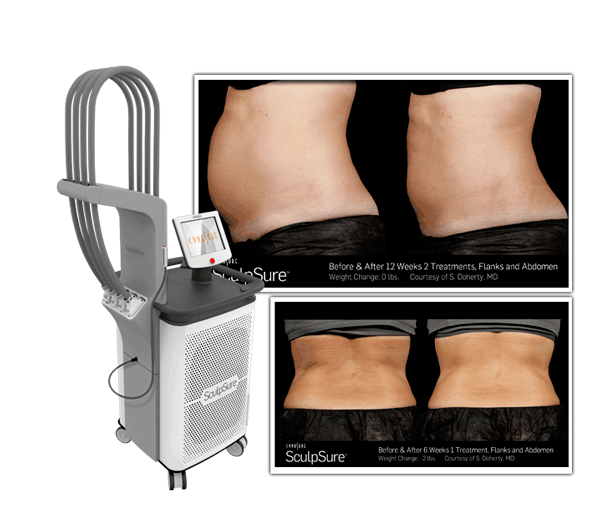 SculpSure Before and After Header Image